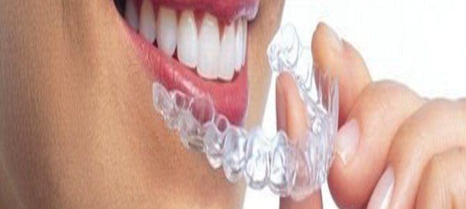 90万円かかる「歯の矯正」がたったの7000円!