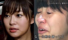 HKT48指原莉乃の整形外科画像がヤバイ?